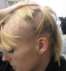movehs - Alopecia